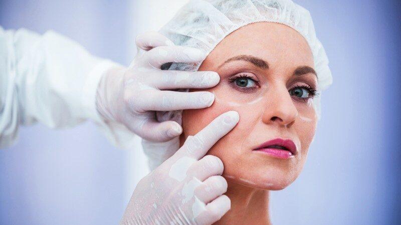 chirurgo plastico intervento blefaroplastica