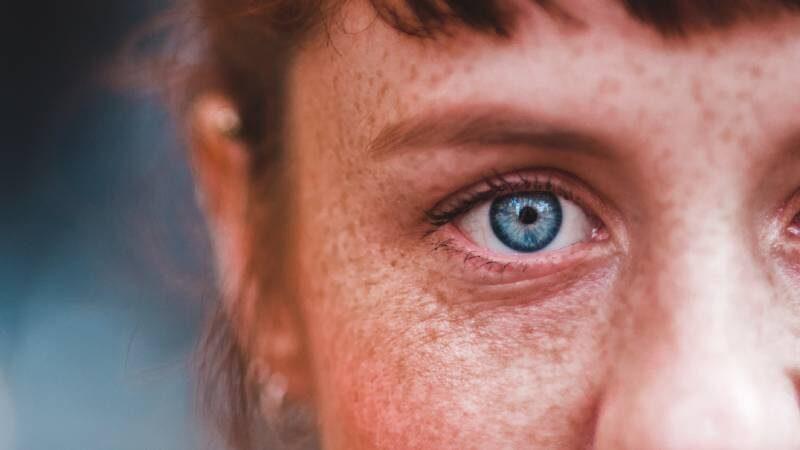 melasma pelle del viso